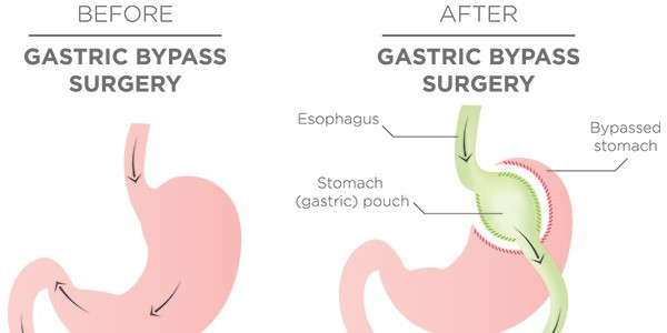 5 Ugly Things I Ve Learned About Gastric Bypass Surgery Plan Z Diet